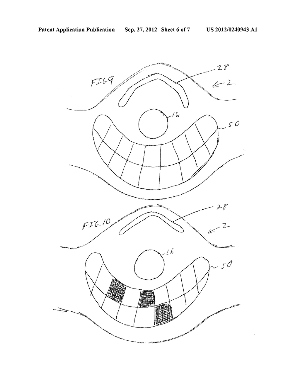 DEVICES, SYSTEMS AND METHODS RELATING TO DUST MASKS HAVING EAR PROTECTION - diagram, schematic, and image 07