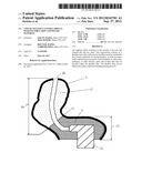 Concha-Fitting Custom Earplug with Flexible Skin and Filler Material diagram and image