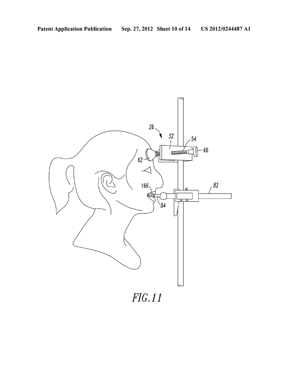 Head Positioning Instrument - diagram, schematic, and image 11