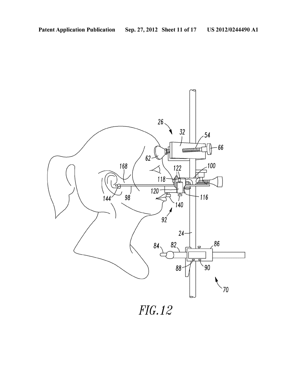Head Positioning Instrument - diagram, schematic, and image 12