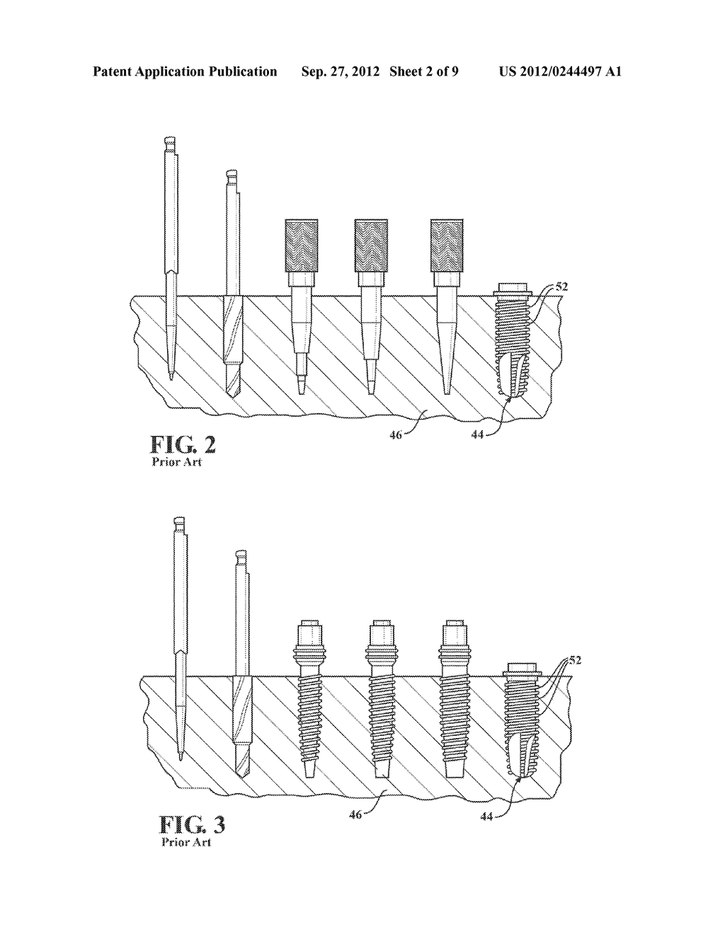 FLUTED OSTEOTOME AND SURGICAL METHOD FOR USE - diagram, schematic, and image 03