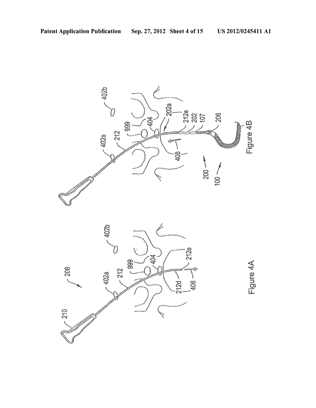 SYSTEMS AND METHODS EMPLOYING A PUSH TUBE FOR DELIVERING A URETHRAL SLING - diagram, schematic, and image 05