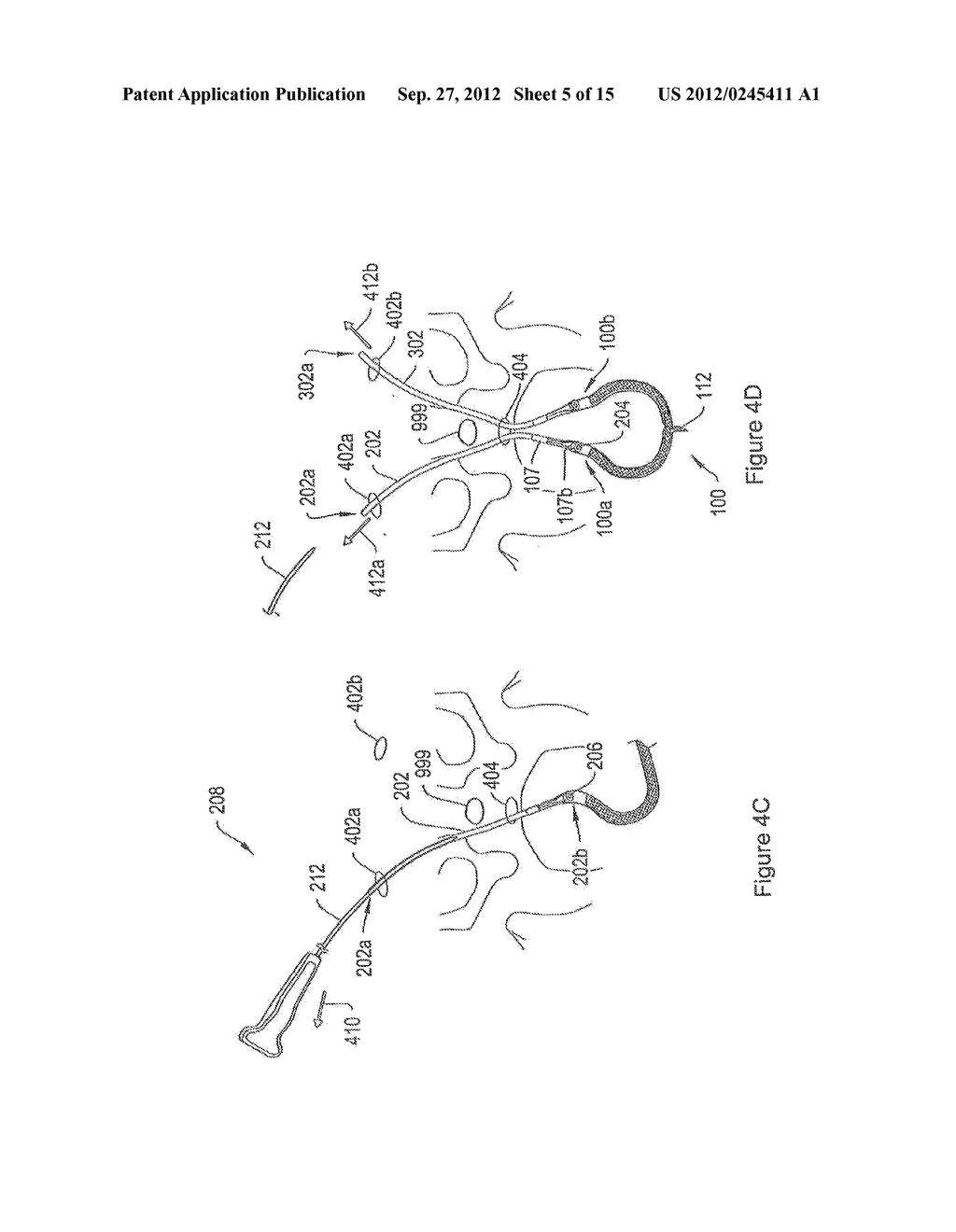 SYSTEMS AND METHODS EMPLOYING A PUSH TUBE FOR DELIVERING A URETHRAL SLING - diagram, schematic, and image 06