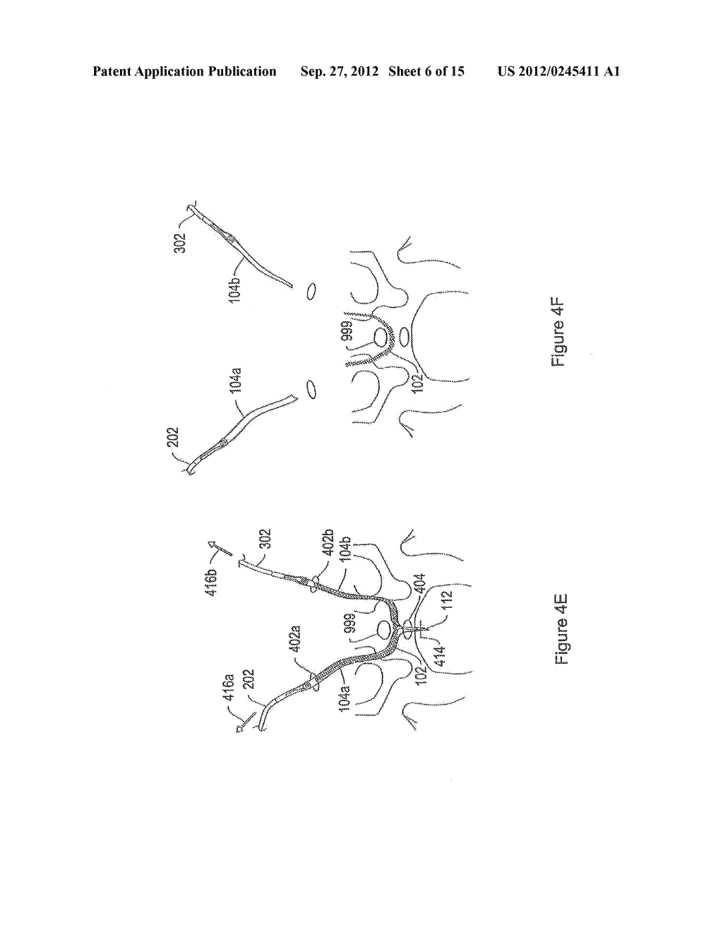 SYSTEMS AND METHODS EMPLOYING A PUSH TUBE FOR DELIVERING A URETHRAL SLING - diagram, schematic, and image 07