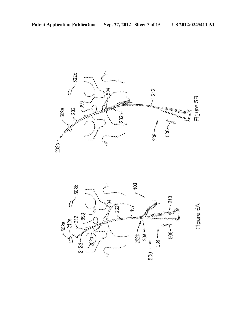 SYSTEMS AND METHODS EMPLOYING A PUSH TUBE FOR DELIVERING A URETHRAL SLING - diagram, schematic, and image 08