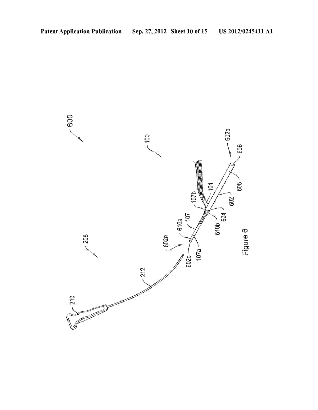 SYSTEMS AND METHODS EMPLOYING A PUSH TUBE FOR DELIVERING A URETHRAL SLING - diagram, schematic, and image 11