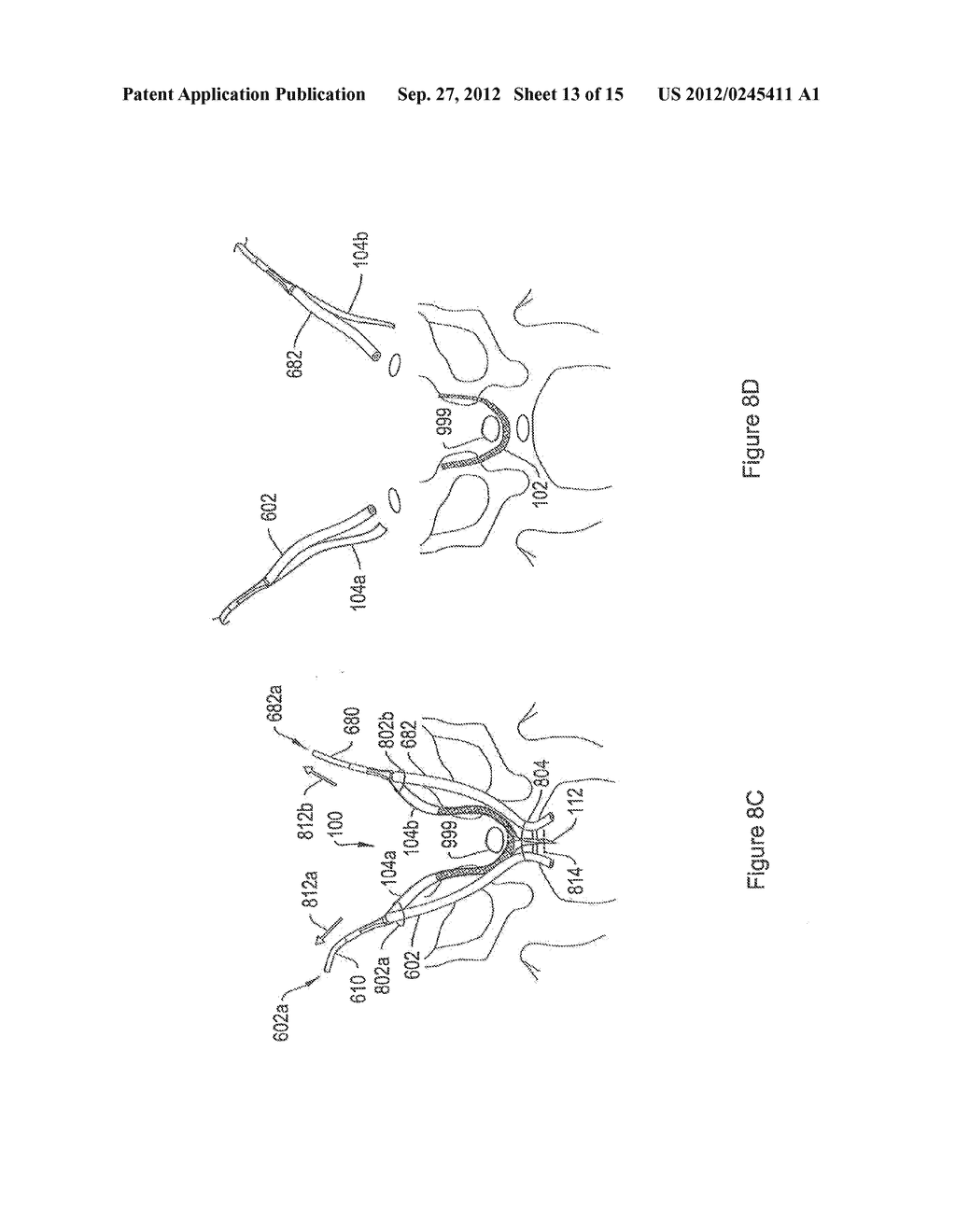 SYSTEMS AND METHODS EMPLOYING A PUSH TUBE FOR DELIVERING A URETHRAL SLING - diagram, schematic, and image 14