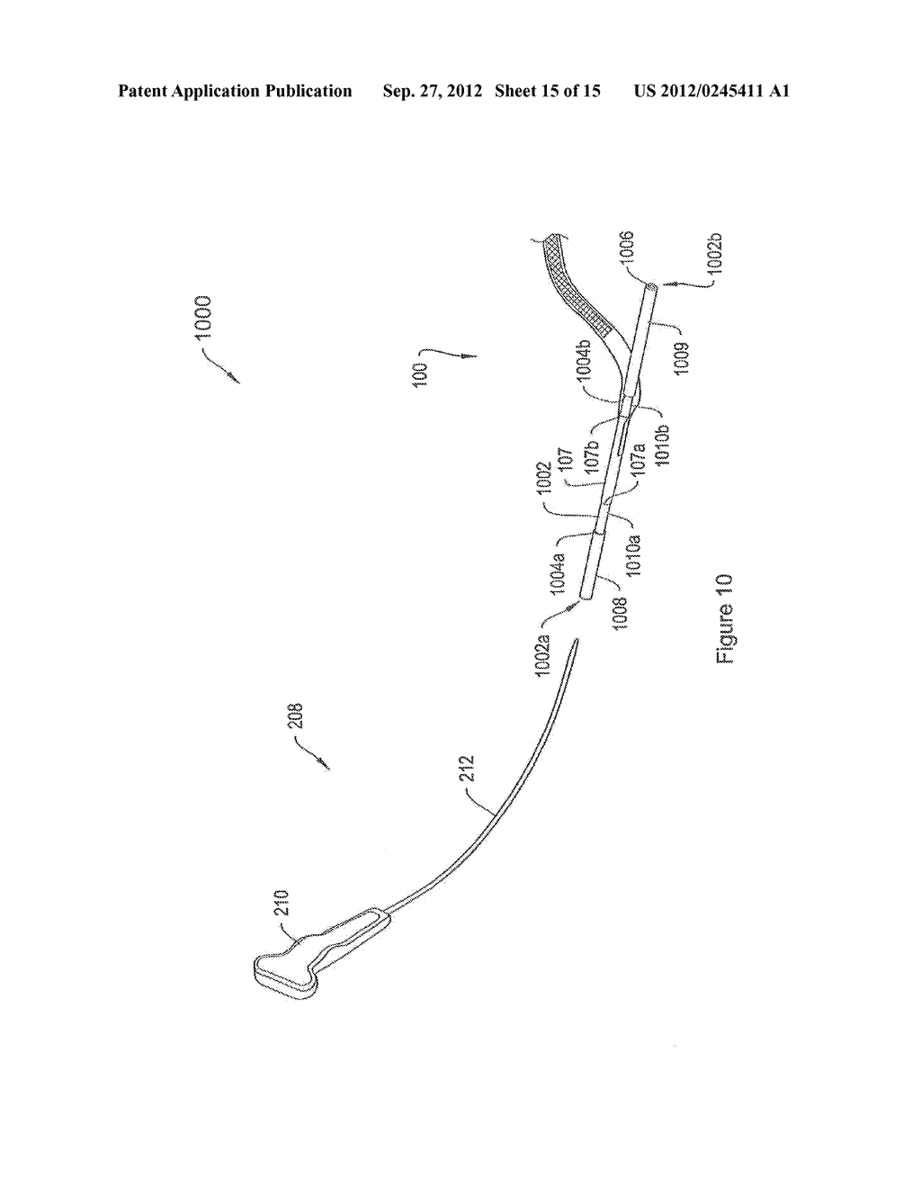 SYSTEMS AND METHODS EMPLOYING A PUSH TUBE FOR DELIVERING A URETHRAL SLING - diagram, schematic, and image 16