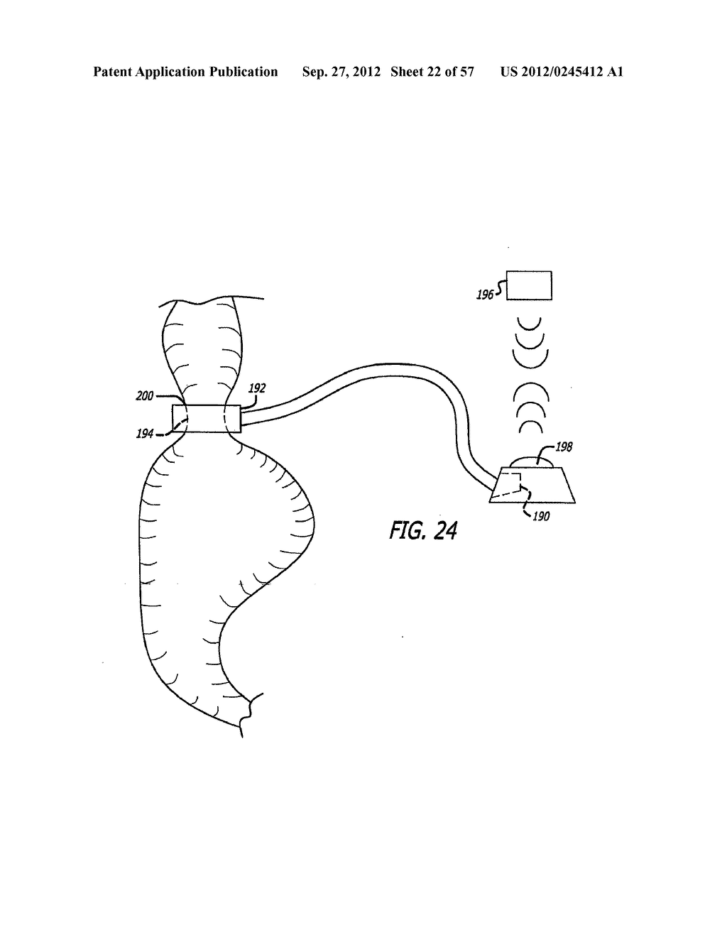 METHOD FOR MODULATING CHANGES IN INTRA-BAND PRESSURE IN A GASTRIC BAND - diagram, schematic, and image 23