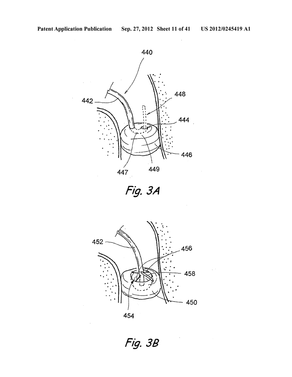Devices, Systems and Methods For Diagnosing and Treating Sinusitis and     Other Disorders of the Ears, Nose and/or Throat - diagram, schematic, and image 12