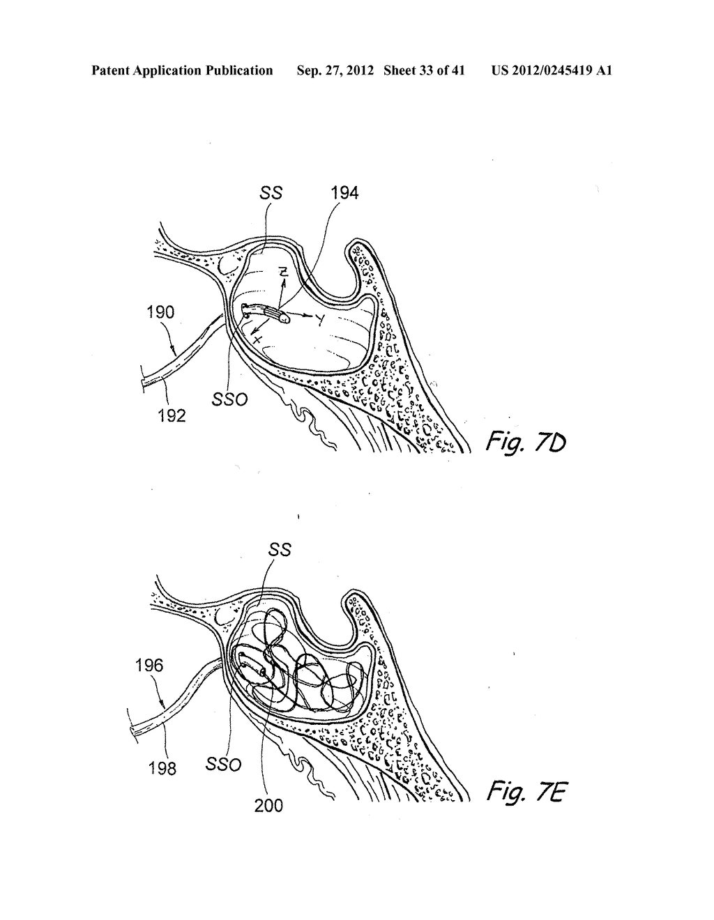 Devices, Systems and Methods For Diagnosing and Treating Sinusitis and     Other Disorders of the Ears, Nose and/or Throat - diagram, schematic, and image 34