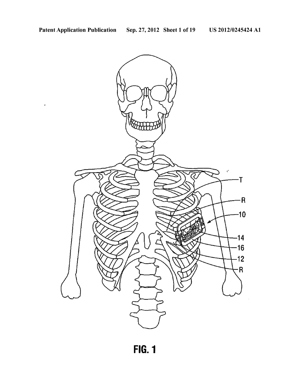 THORACIC ACCESS PORT - diagram, schematic, and image 02