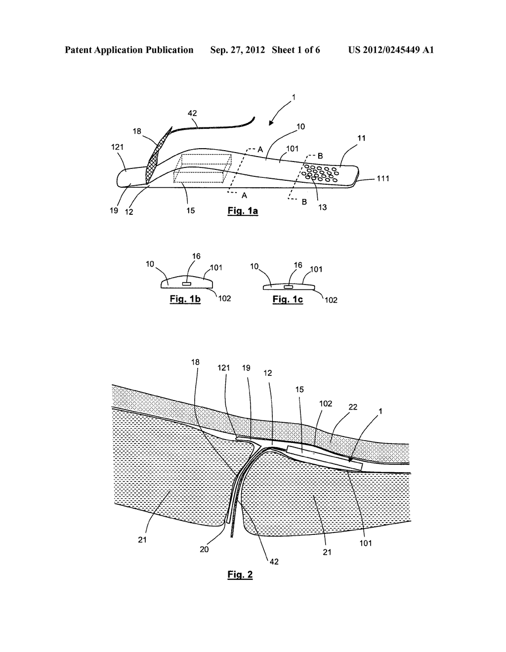 APPARATUS FOR STIMULATING AND/OR MONITORING ACTIVITY IN TISSUE - diagram, schematic, and image 02