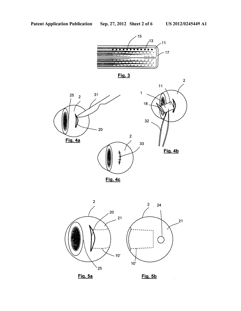 APPARATUS FOR STIMULATING AND/OR MONITORING ACTIVITY IN TISSUE - diagram, schematic, and image 03