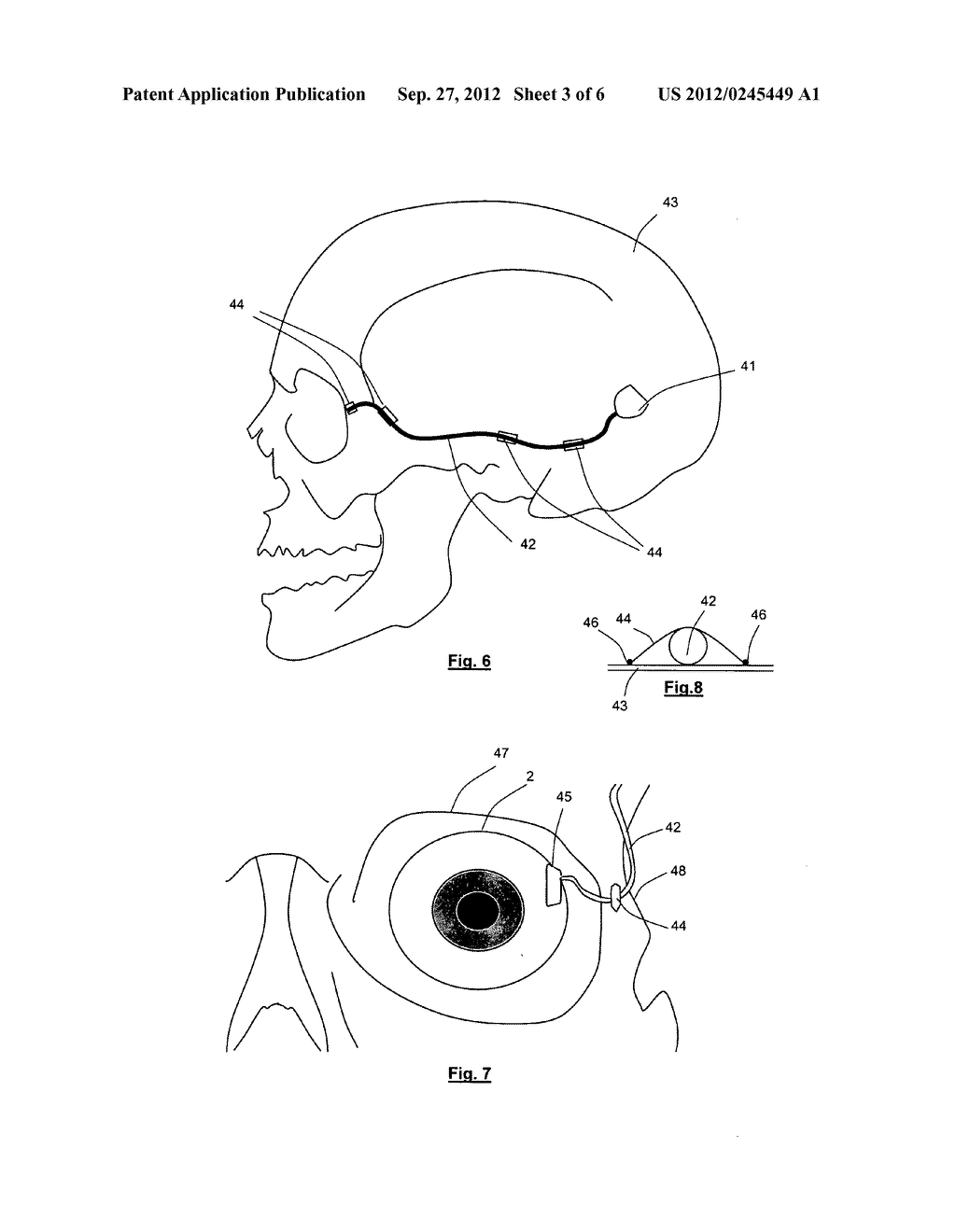 APPARATUS FOR STIMULATING AND/OR MONITORING ACTIVITY IN TISSUE - diagram, schematic, and image 04