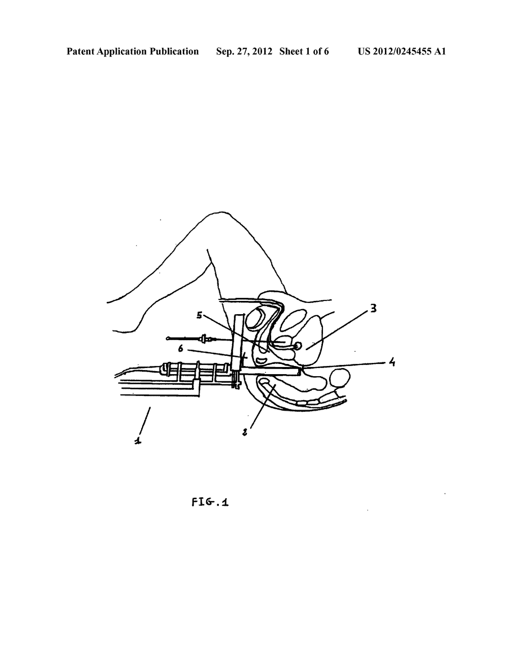 Control System and Method for Precisely Guiding a Percutaneous Needle     Toward the Prostate - diagram, schematic, and image 02