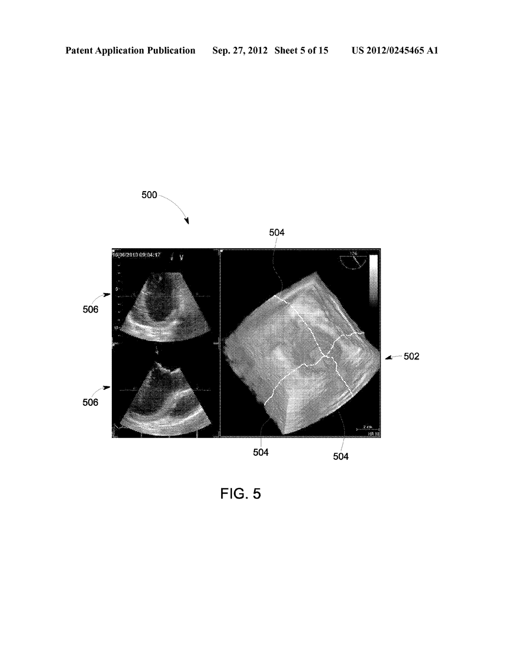 METHOD AND SYSTEM FOR DISPLAYING INTERSECTION INFORMATION ON A VOLUMETRIC     ULTRASOUND IMAGE - diagram, schematic, and image 06