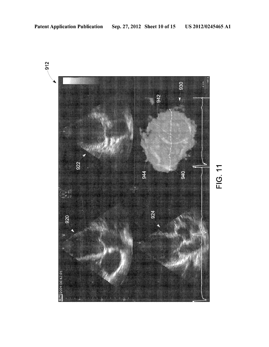 METHOD AND SYSTEM FOR DISPLAYING INTERSECTION INFORMATION ON A VOLUMETRIC     ULTRASOUND IMAGE - diagram, schematic, and image 11