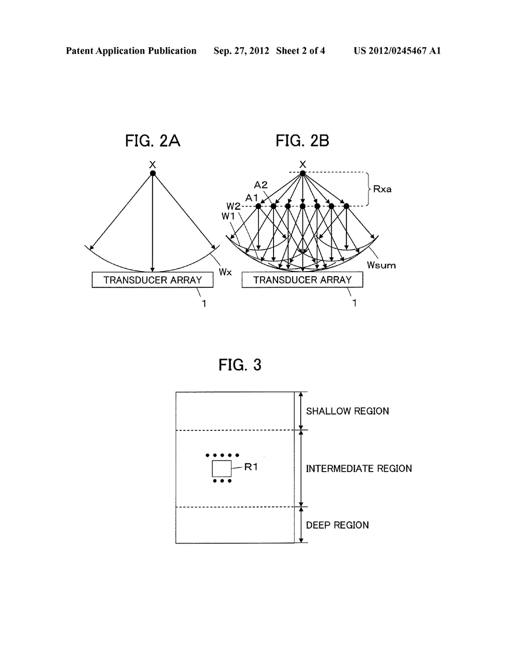 ULTRASOUND DIAGNOSTIC APPARATUS AND ULTRASOUND IMAGE PRODUCING METHOD - diagram, schematic, and image 03