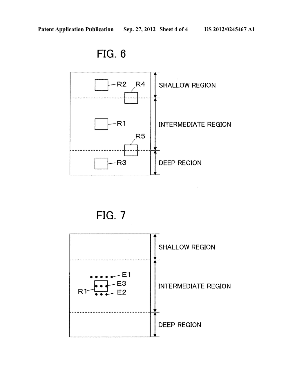 ULTRASOUND DIAGNOSTIC APPARATUS AND ULTRASOUND IMAGE PRODUCING METHOD - diagram, schematic, and image 05