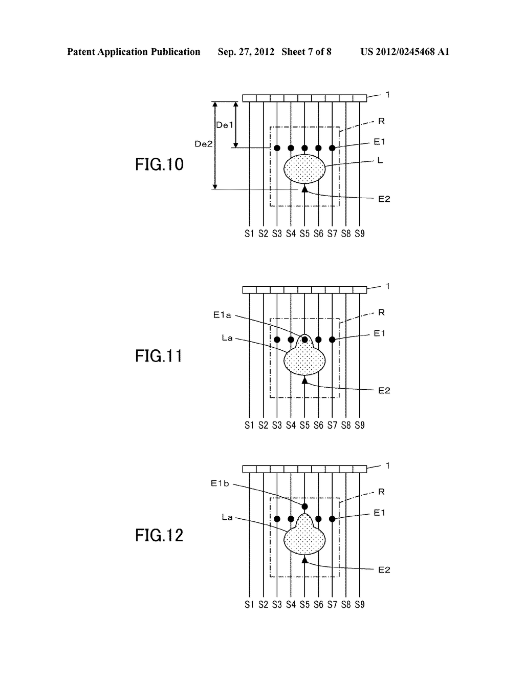 ULTRASOUND DIAGNOSTIC APPARATUS AND METHOD OF PRODUCING ULTRASOUND IMAGE - diagram, schematic, and image 08