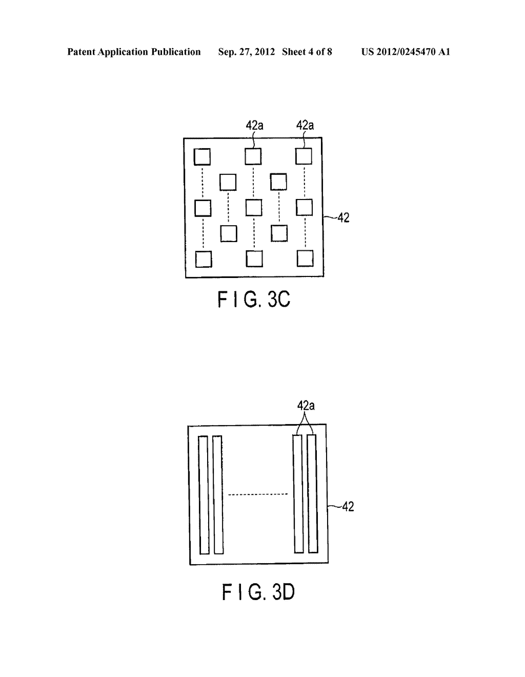ULTRASONIC PROBE AND METHOD FOR MANUFACTURING ULTRASONIC PROBE - diagram, schematic, and image 05