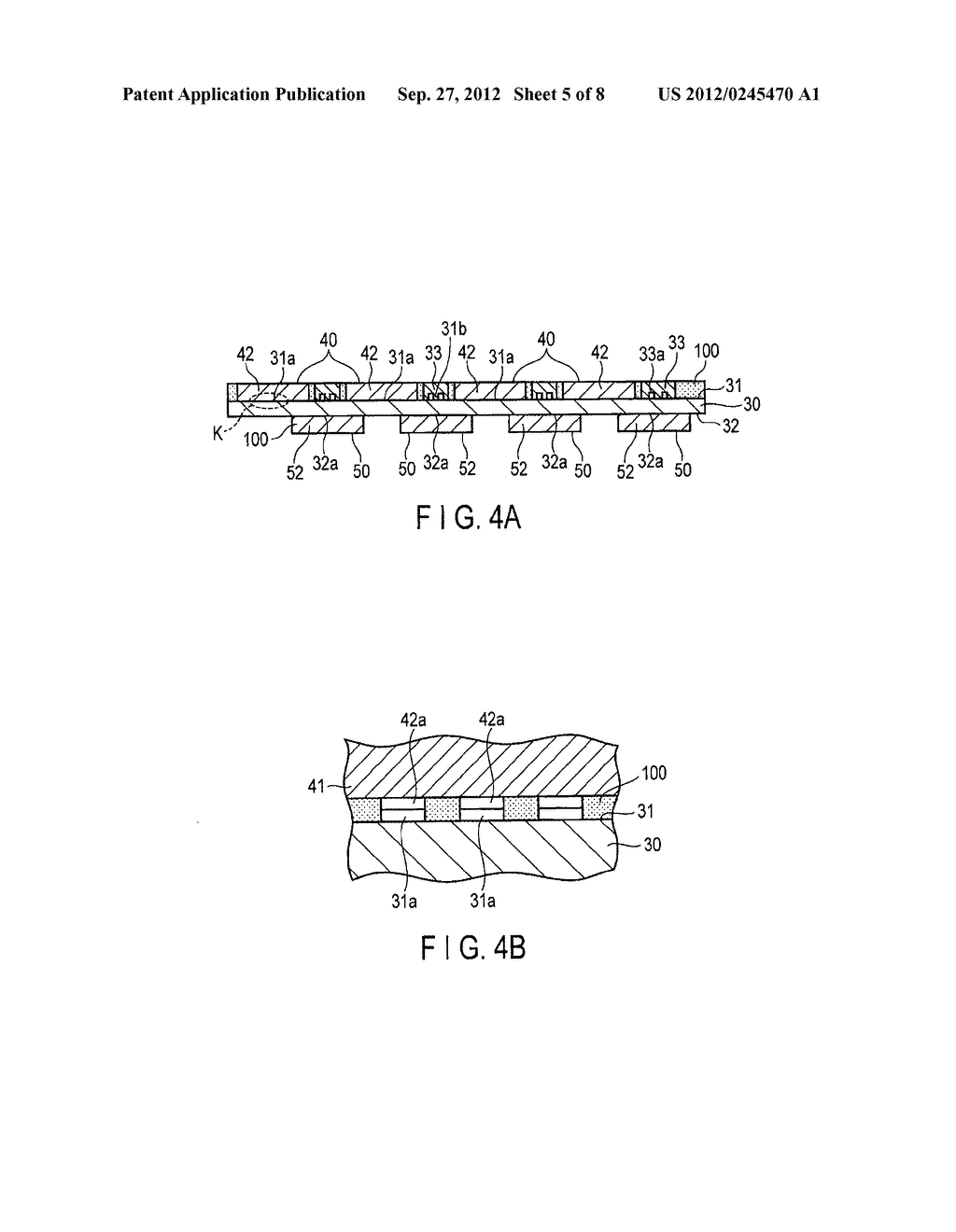 ULTRASONIC PROBE AND METHOD FOR MANUFACTURING ULTRASONIC PROBE - diagram, schematic, and image 06