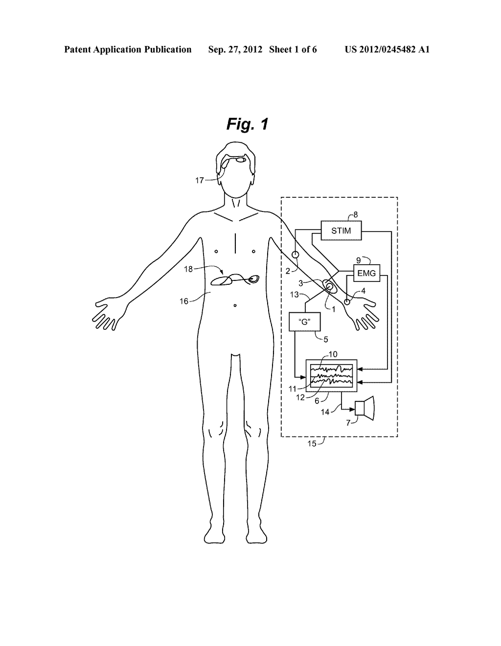 Anesthesia Monitoring Device and Method - diagram, schematic, and image 02
