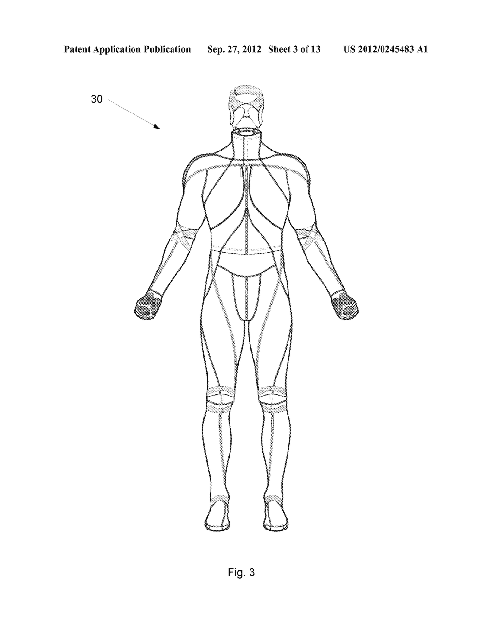 System And Garment For Muscle Relaxation Of A Spastic Muscle - diagram, schematic, and image 04