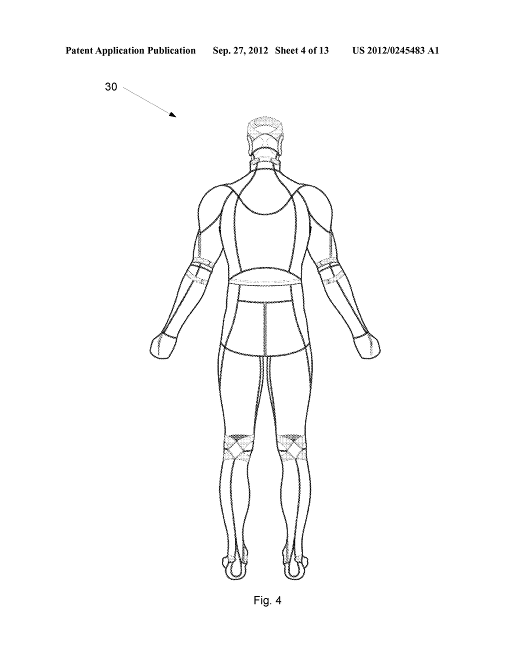 System And Garment For Muscle Relaxation Of A Spastic Muscle - diagram, schematic, and image 05