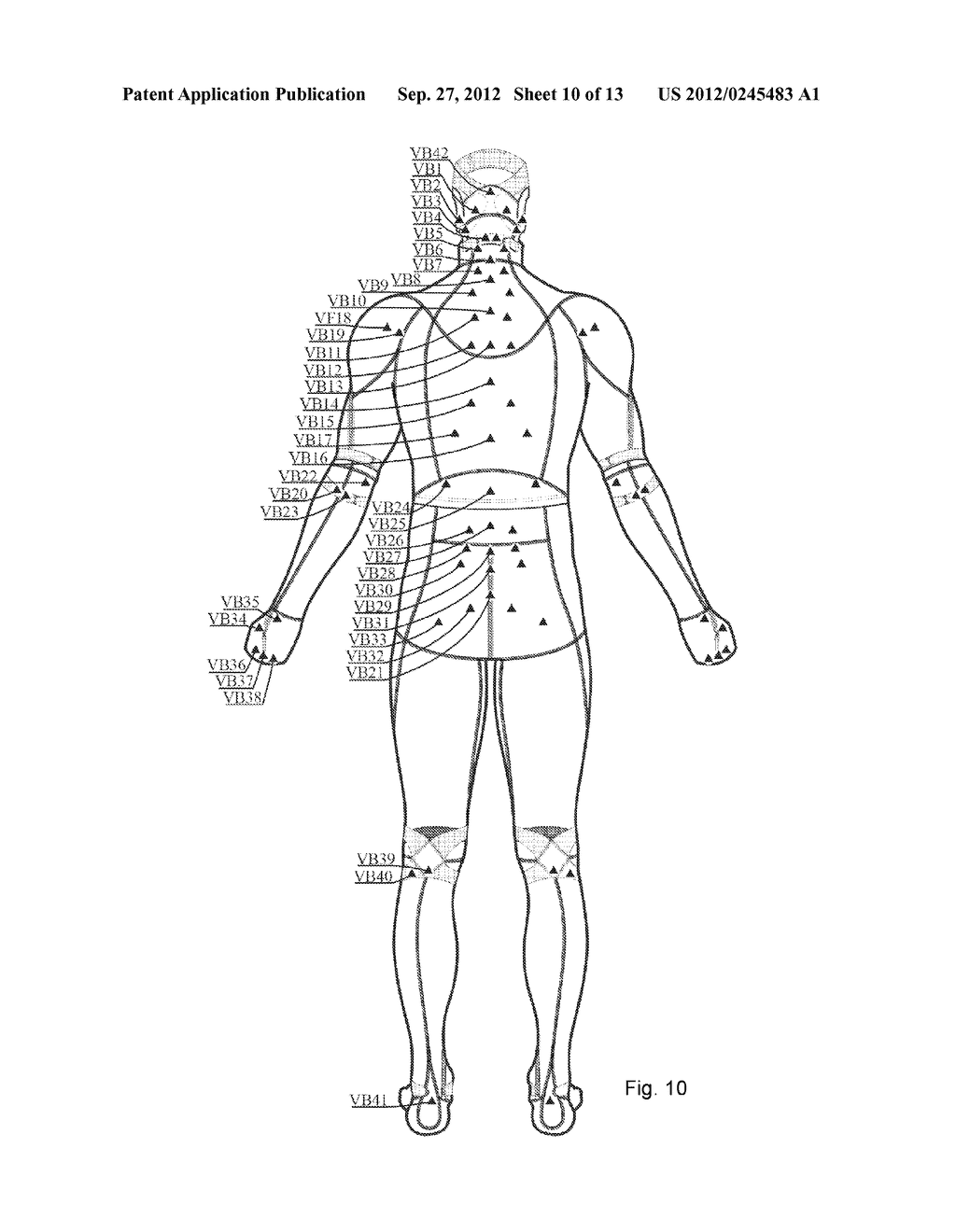 System And Garment For Muscle Relaxation Of A Spastic Muscle - diagram, schematic, and image 11