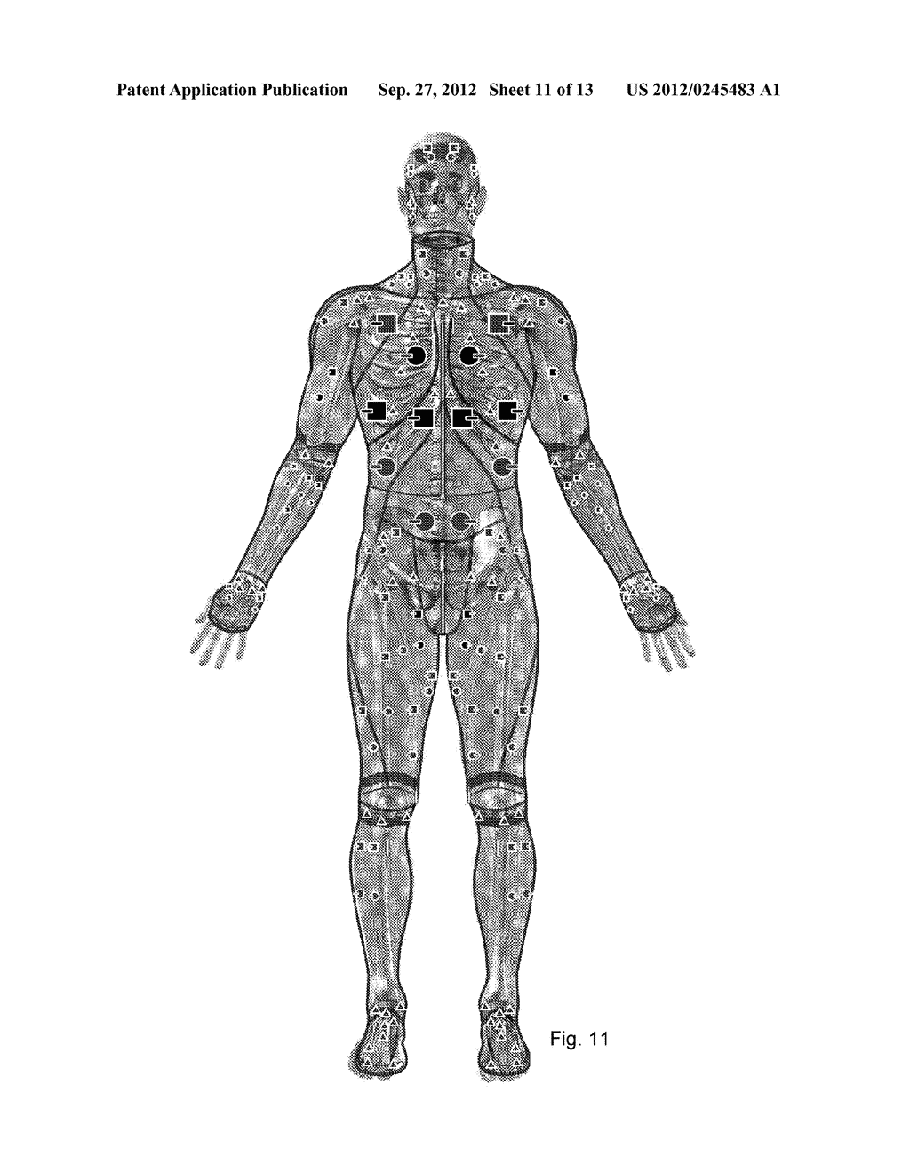 System And Garment For Muscle Relaxation Of A Spastic Muscle - diagram, schematic, and image 12