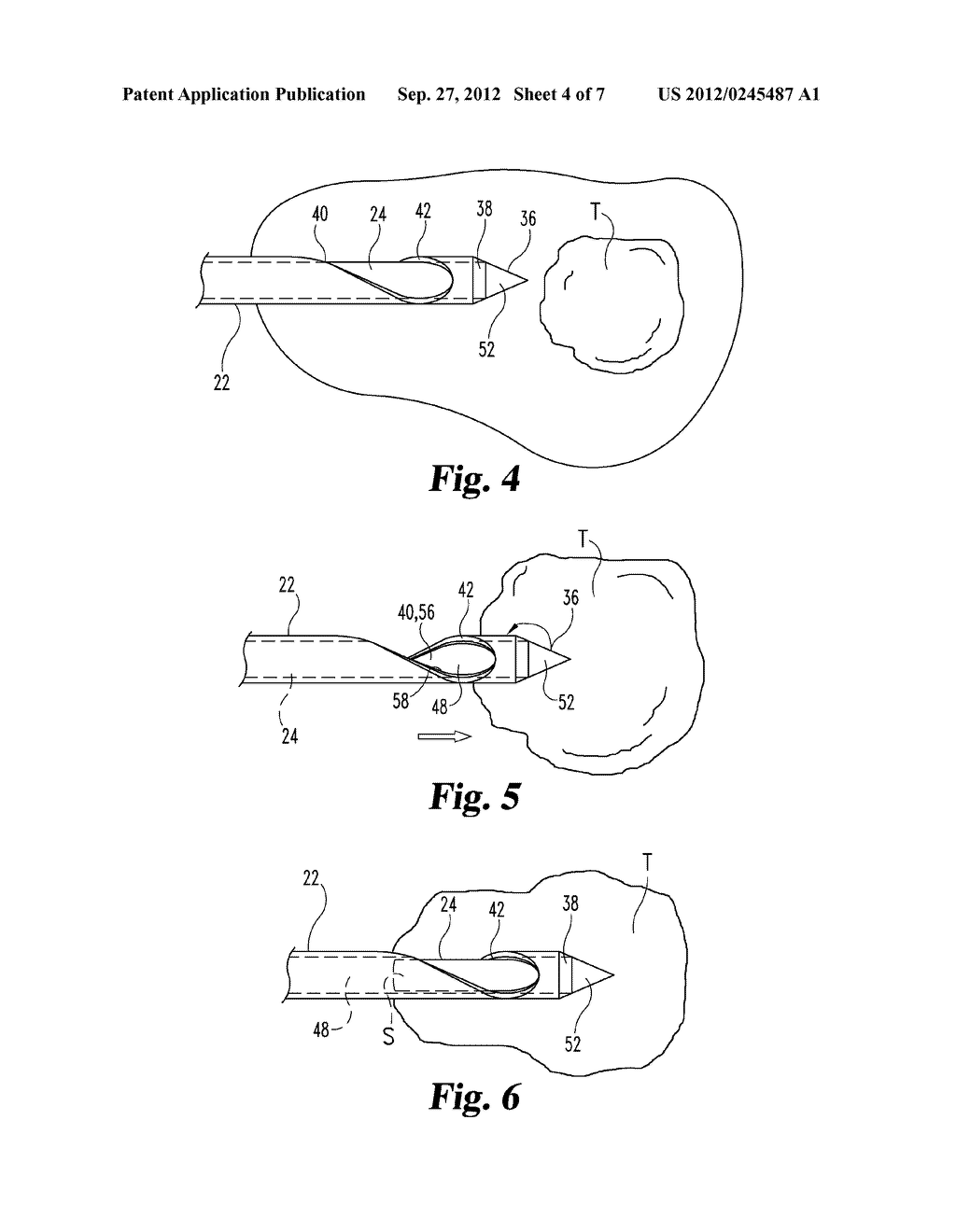CLOSED SIDE-SAMPLING BIOPSY DEVICE - diagram, schematic, and image 05