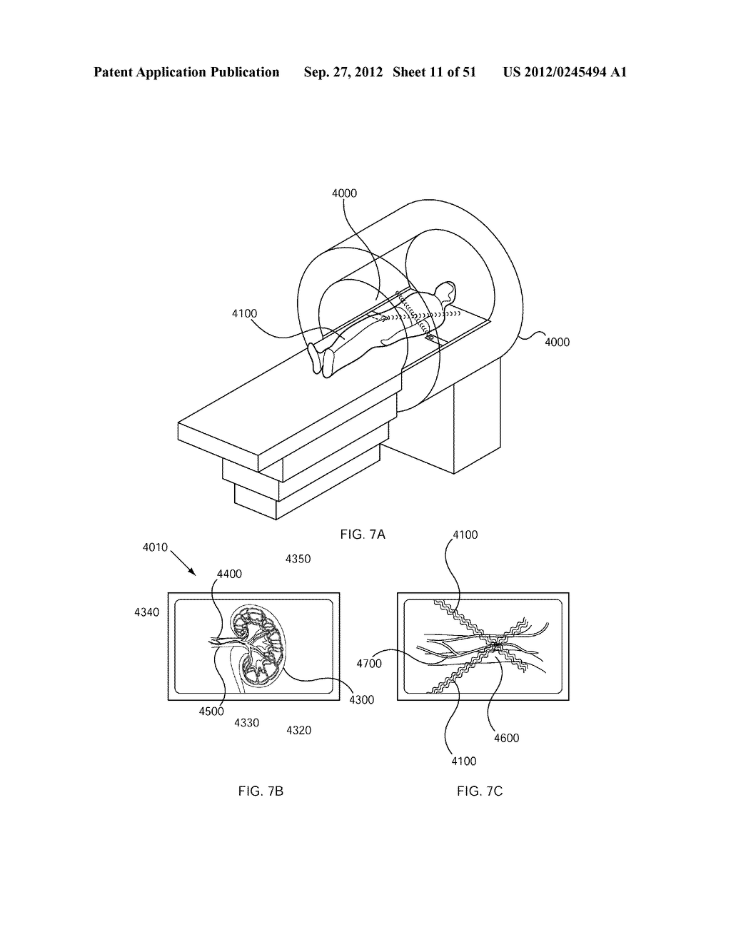 METHODS FOR TREATMENT USING ULTRASONIC ENERGY - diagram, schematic, and image 12