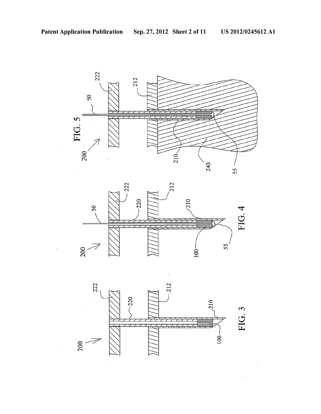 HAIR IMPLANT ANCHORS AND SYSTEMS AND METHODS FOR USE THEREOF - diagram, schematic, and image 03