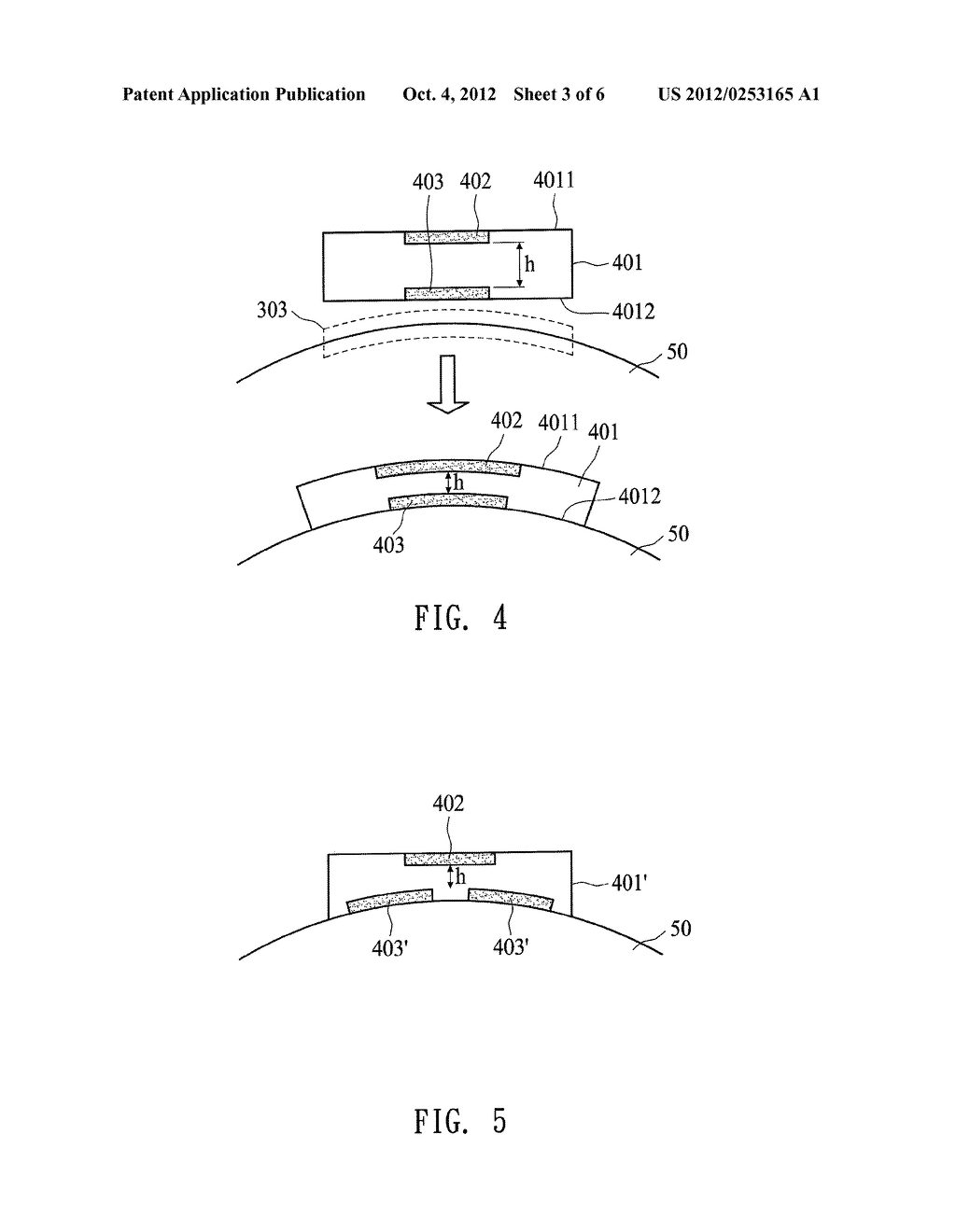 INTRAOCULAR PRESSURE DETECTING DEVICE AND DETECTING METHOD THEREOF - diagram, schematic, and image 04
