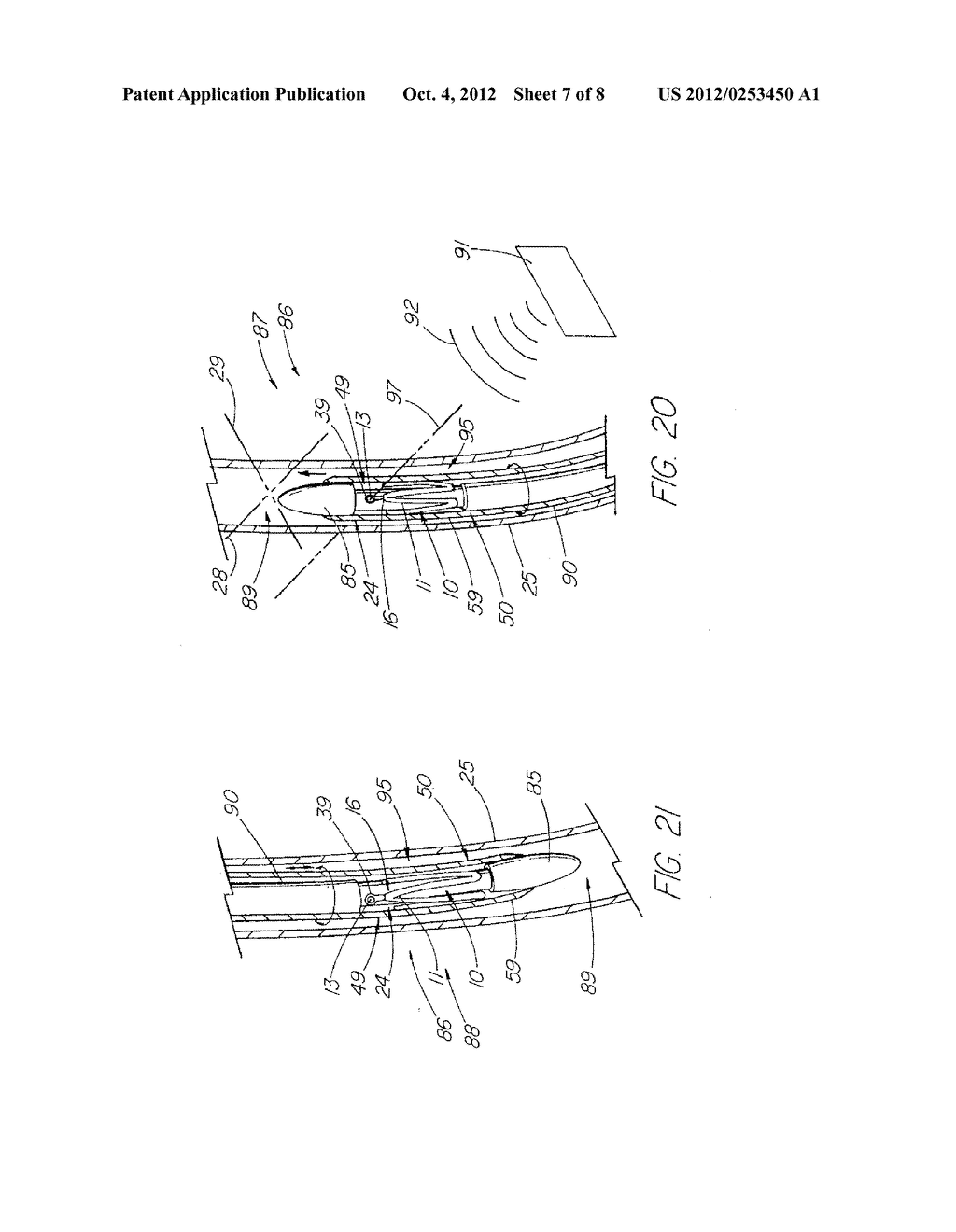 Prosthesis Adapted for Placement Under External Imaging - diagram, schematic, and image 08