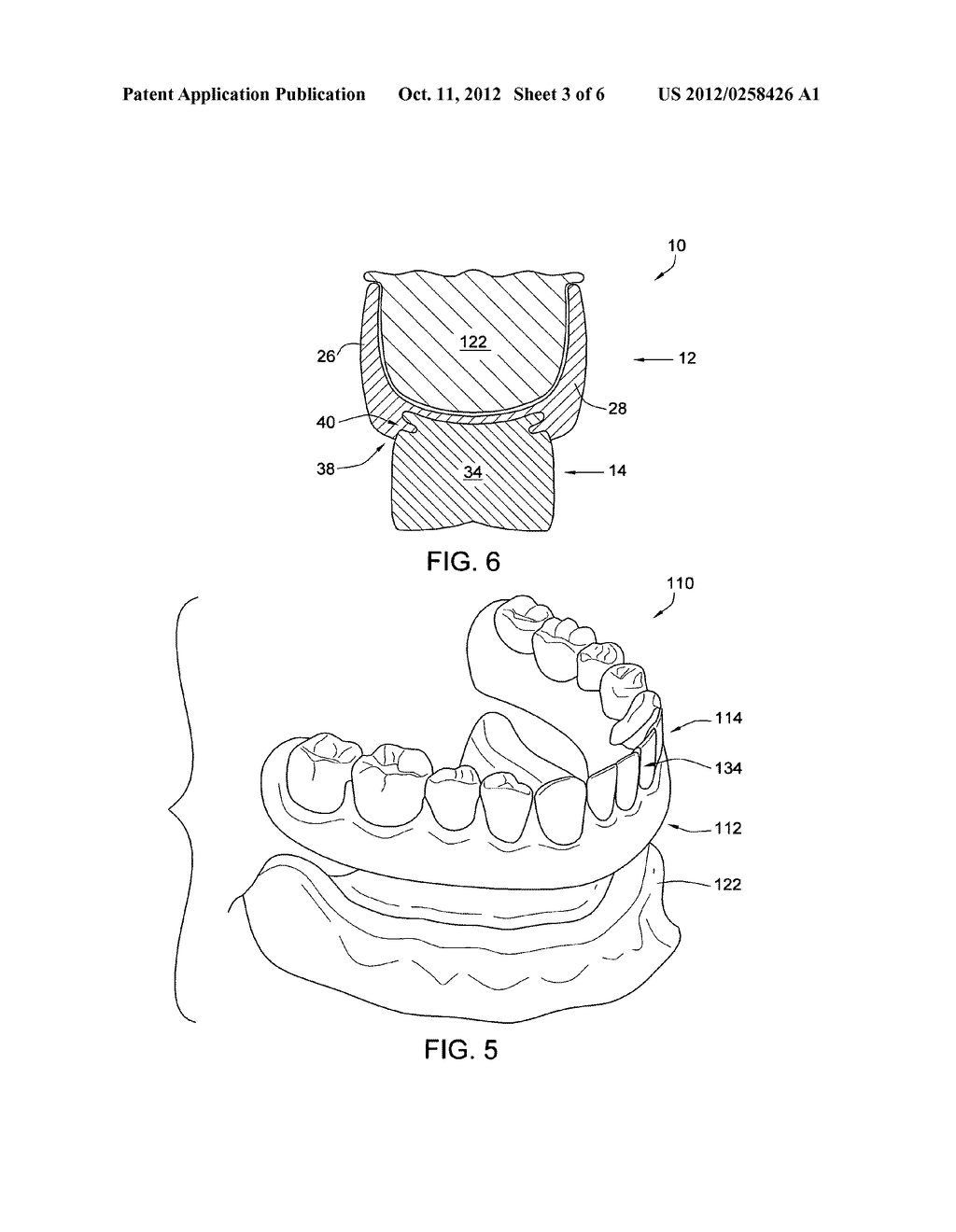 Dental prosthetic device with remoldable base - diagram, schematic, and image 04
