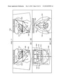 System and Method for Three-Dimensional Maxillofacial Surgical Simulation     and Planning diagram and image