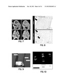 Engineered Xenogeneic Cells for Repair of Biological Tissue diagram and image