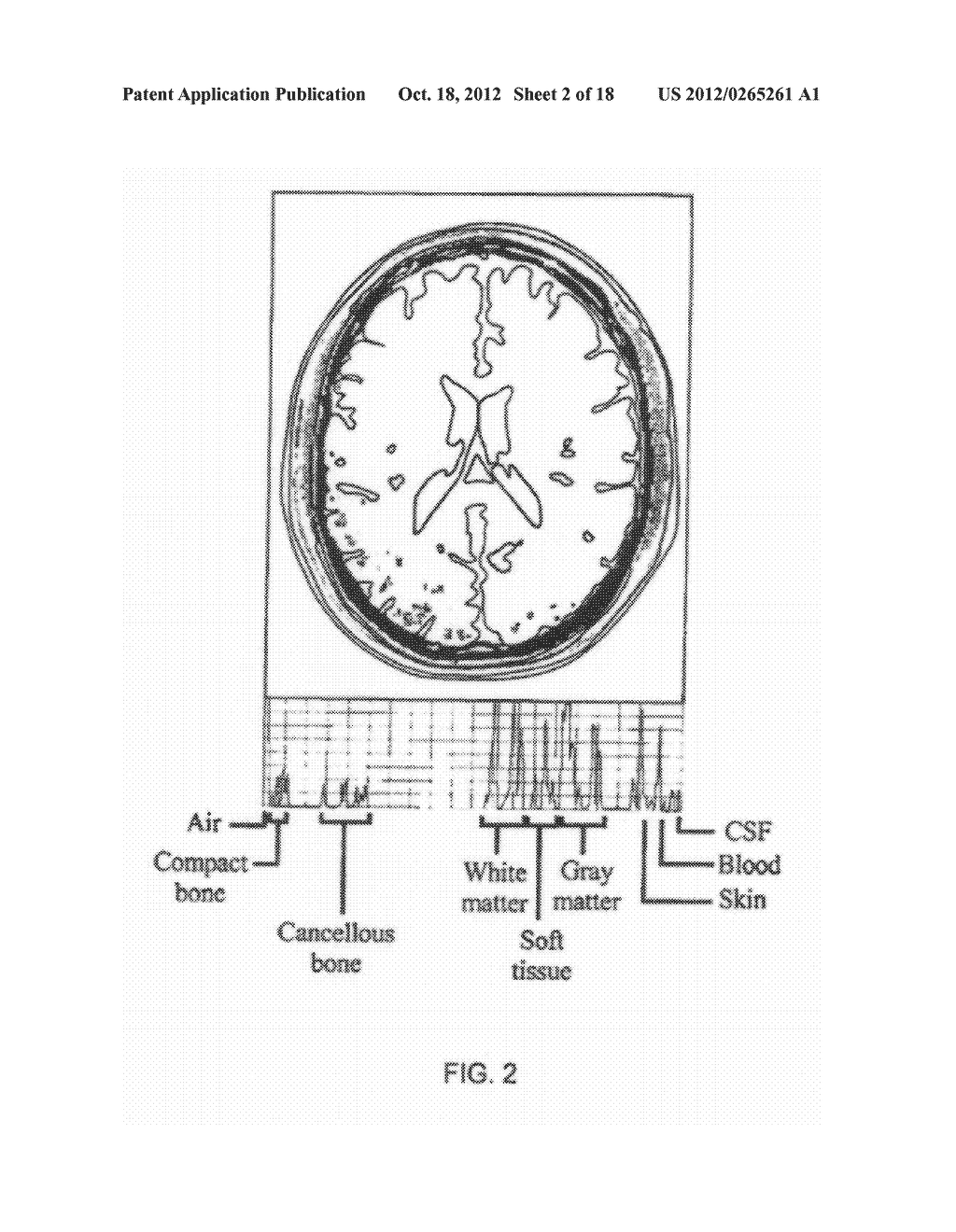 Neurocranial Electrostimulation Models, Systems, Devices, and Methods - diagram, schematic, and image 03