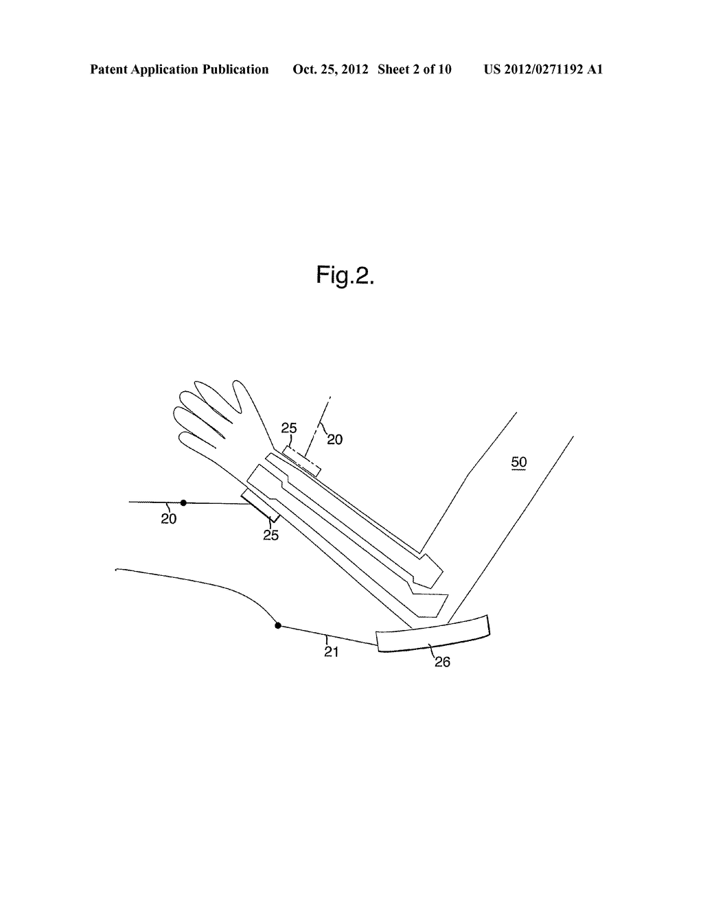 METHOD AND APPARATUS FOR ANALYSING THE STRUCTURE OF BONE TISSUE - diagram, schematic, and image 03