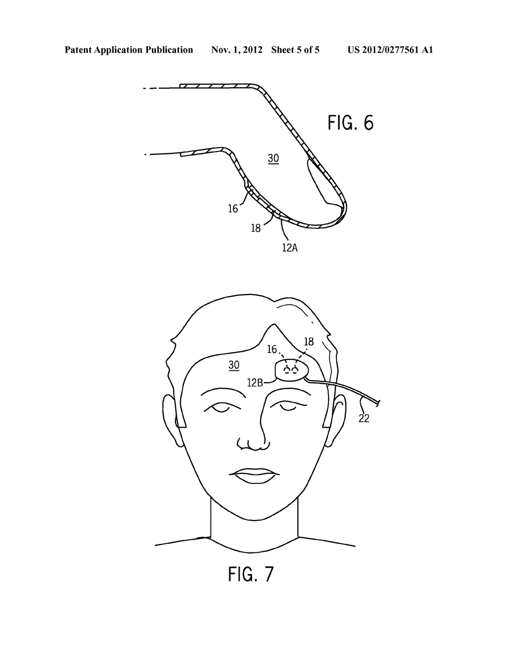 SYSTEM AND METHOD FOR DETECTION OF VENOUS PULSATION - diagram, schematic, and image 06