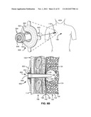 TWO-PHASE SURGICAL PROCEDURE FOR CREATING A PNEUMOSTOMA TO TREAT CHRONIC     OBSTRUCTIVE PULMONARY DISEASE diagram and image