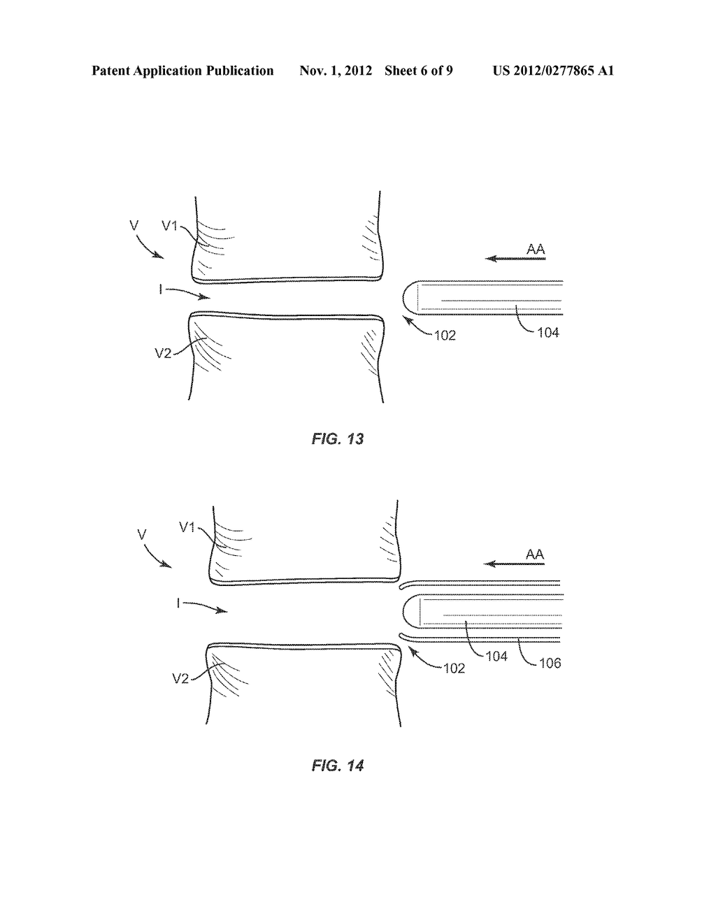EXPANDABLE IMPLANT SYSTEM AND METHODS OF USE - diagram, schematic, and image 07