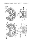 ENDOLUMINAL IMPLANTABLE SURFACES, STENTS, AND GRAFTS AND METHOD OF MAKING     SAME diagram and image