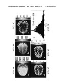 MAGNETIC RESONANCE IMAGING USING VELOCITY SELECTIVE EXCITATION diagram and image