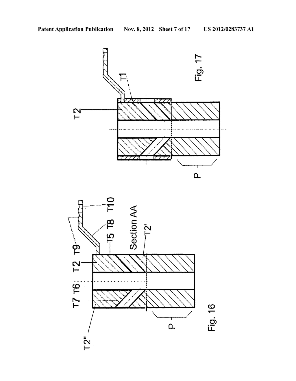 Guide Tube Positioning Method in Polymeric Material Plate, Tomographic     Reference Support and Guide Tube Positioning Device - diagram, schematic, and image 08