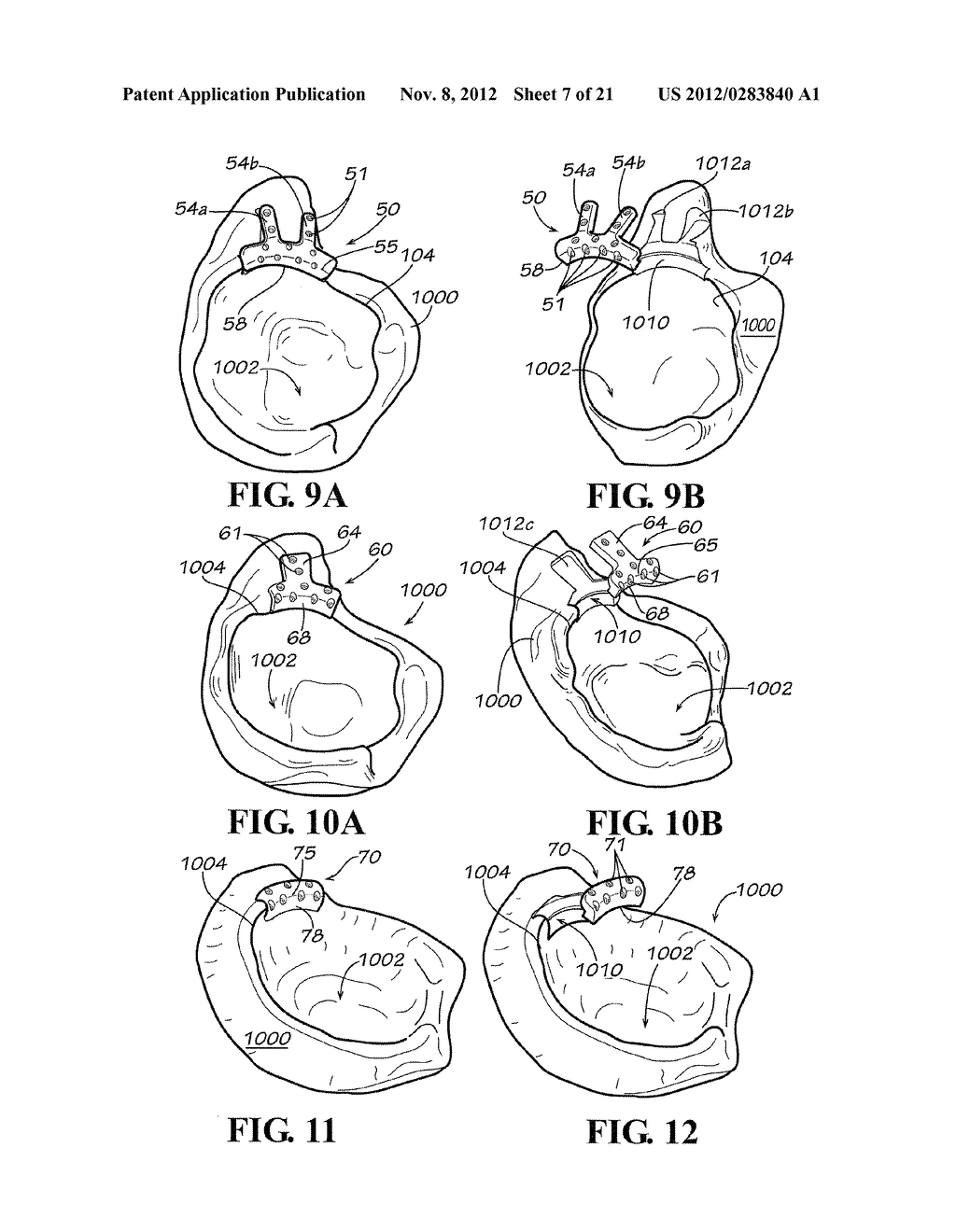 METHODS AND APPARATUS FOR FAI SURGERIES - diagram, schematic, and image 08