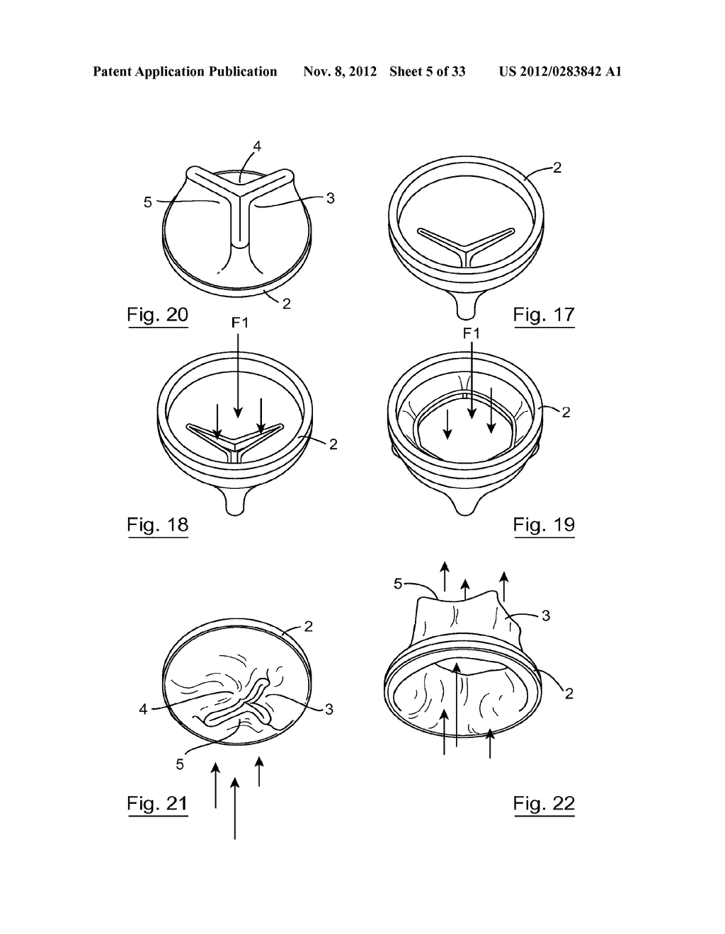 ESOPHAGEAL VALVE DEVICE FOR PLACING IN THE CARDIA - diagram, schematic, and image 06